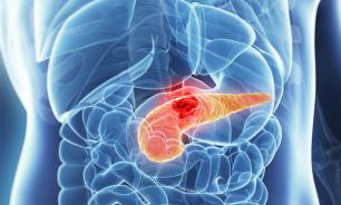 Девять факторов, помогающих развиться раку поджелудочной железы