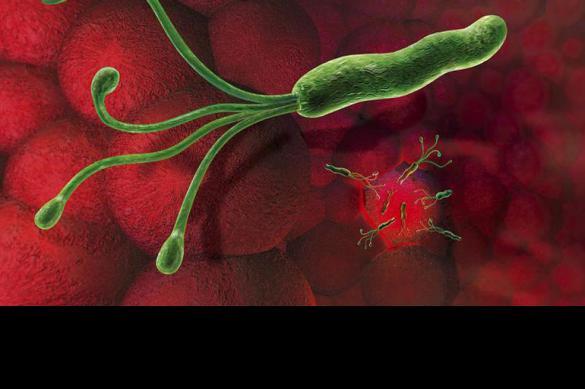Хеликобактер пилори может привести к раку желудка