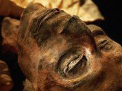 Кариес, рак, артроз - болезни мумий
