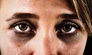 Темные круги под глазами - это не только последствия бессонных ночей