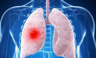 Типы рака легкого: мелкоклеточный, немелкоклеточный и другие