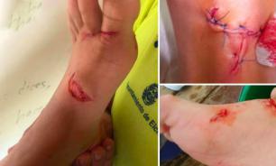 Крупная рыба наносит травмы отдыхающим на пляже в Испании