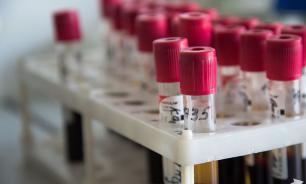 Ученые установили причину, по которой лекарства не могут уничтожить ВИЧ