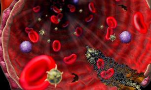 Эозинофилия. Причины, симптомы, лечение