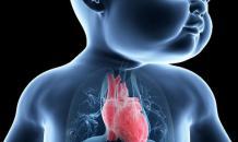 Синдром гипоплазии левых отделов сердца. Симптомы, диагностика, лечение