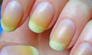 Синдром жёлтого ногтя