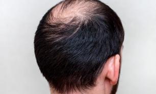 Причины облысения и как спасти свои волосы