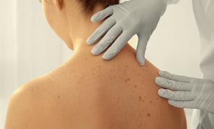 Местные агенты, криохирругия и другие виды терапии, применяемые в дерматологии
