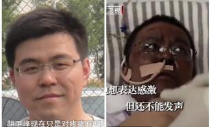Кожа китайских врачей из Уханя почернела после COVID-19