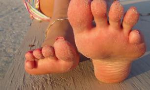 Мозоли на ногах могут оказаться симптомом рака пищевода