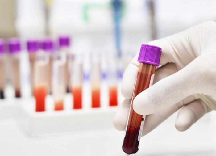 """Вероятность """"подцепить"""" COVID-19 зависит от группы крови человека"""
