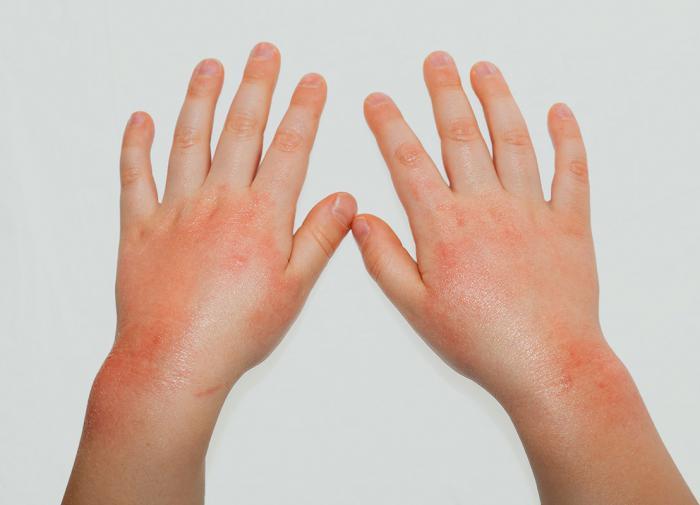 Красные пятна на коже: причины и как лечить