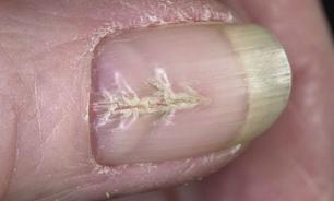 Расщепление в середине ногтя может возникнуть из-за маникюра