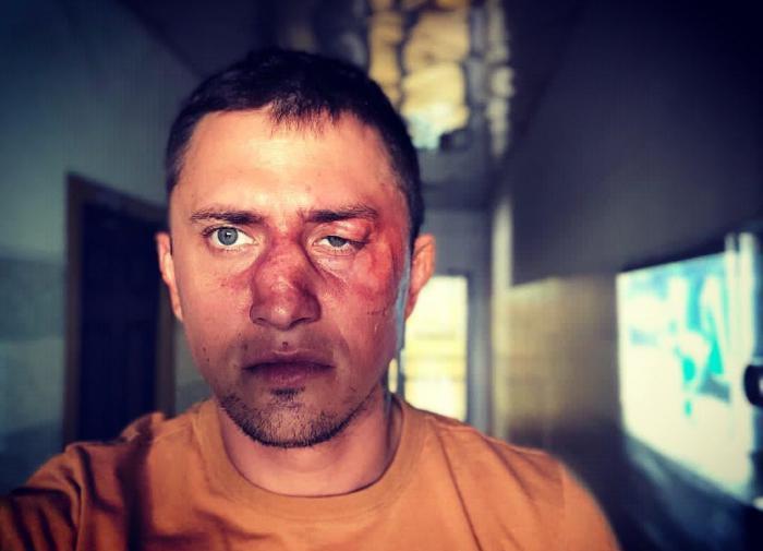 Избивший Прилучного бизнесмен подробно рассказал, как было дело