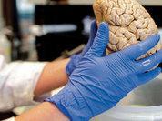 Исследование: за шизофрению отвечает семь генетических вариаций