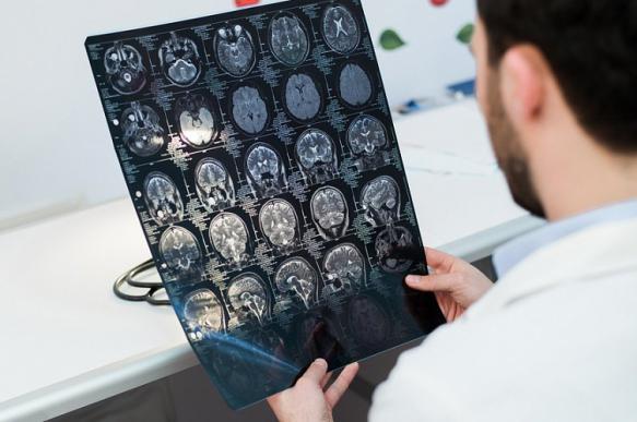 Российские специалисты определили влияющие на развитие инсульта факторы