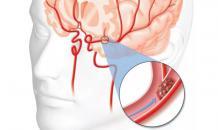 Британские врачи рассказали о способах профилактики инсульта