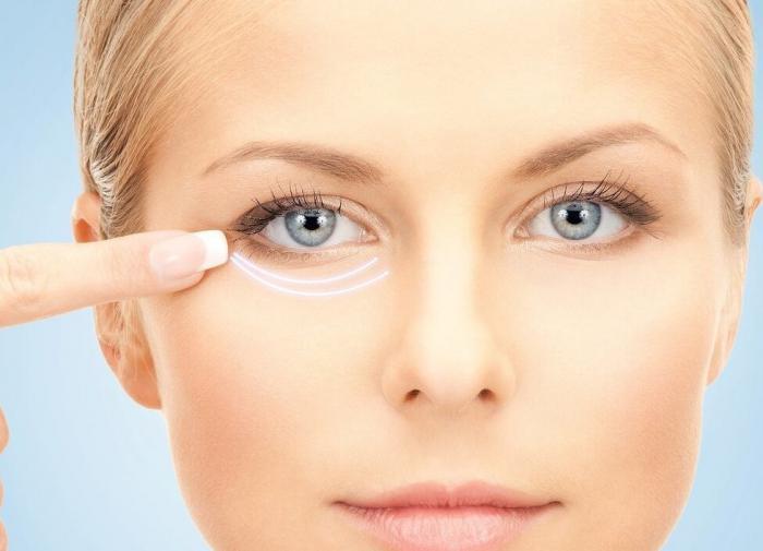 Мешки под глазами: инструкция по избавлению