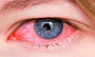 Конъюнктивит может свидетельствовать о заражении коронавирусом