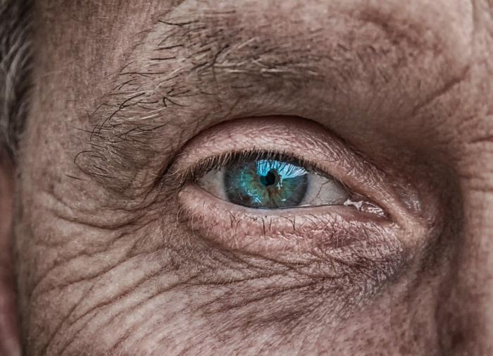 Слепому 78-летнему израильтянину за сутки полностью восстановили зрение