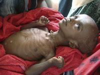 Голод в Сомали: миллионы человек спасаются бегством.