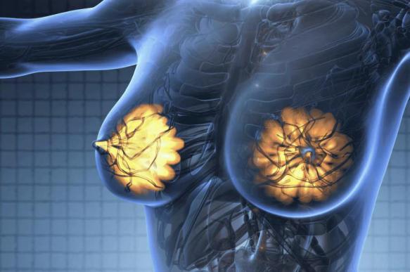 Рак молочной железы: Правда и мифы