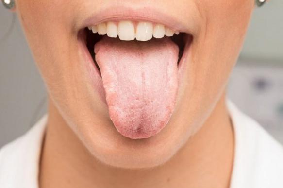 Лечение молочницы полости рта и побочные эффекты. Профилактика орального кандидоза