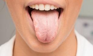 Лечение молочницы полости рта противогрибковыми препаратами