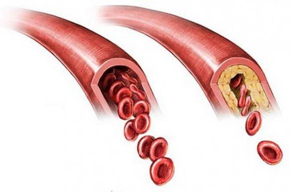 Почему в крови бывает много кальция?