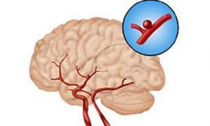 Что такое церебральная аневризма?