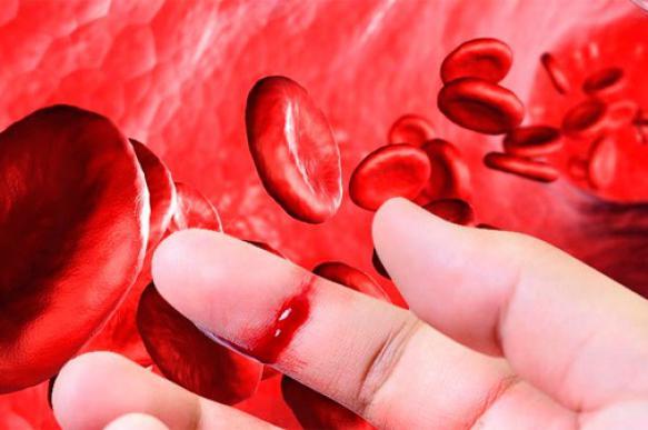 Гемофилия. Симптомы, диагностика, лечение