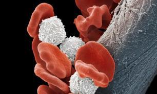 Волосатоклеточная лейкемия: симптомы, диагностика, лечение