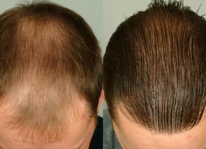 Методы и средства восстановления волос после выпадения: оценка эффективности