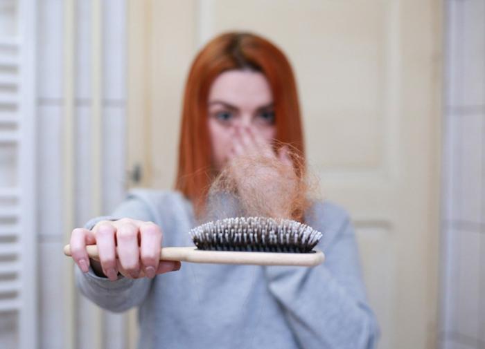 Раскрыта причина выпадения волос из-за стресса