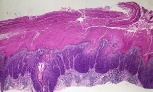 Плоскоклеточная карцинома: чем раньше диагностирована, тем легче лечить
