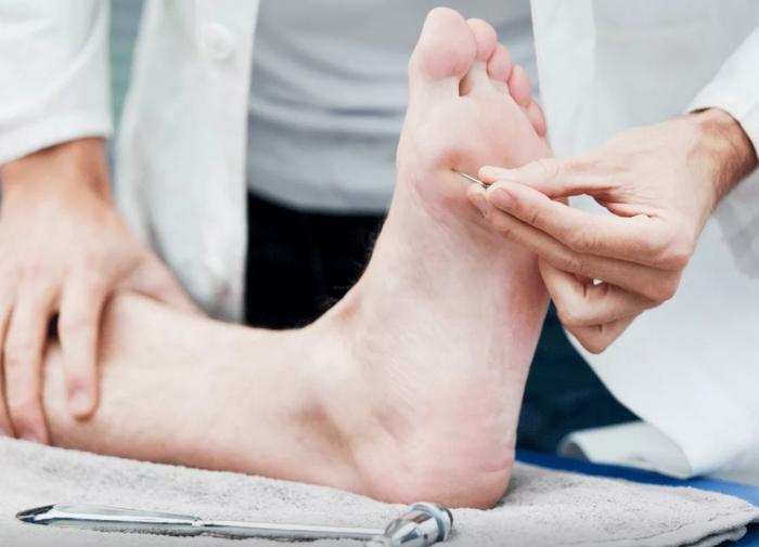 Периферическая нейропатия: онемение и покалывание в руках или ногах