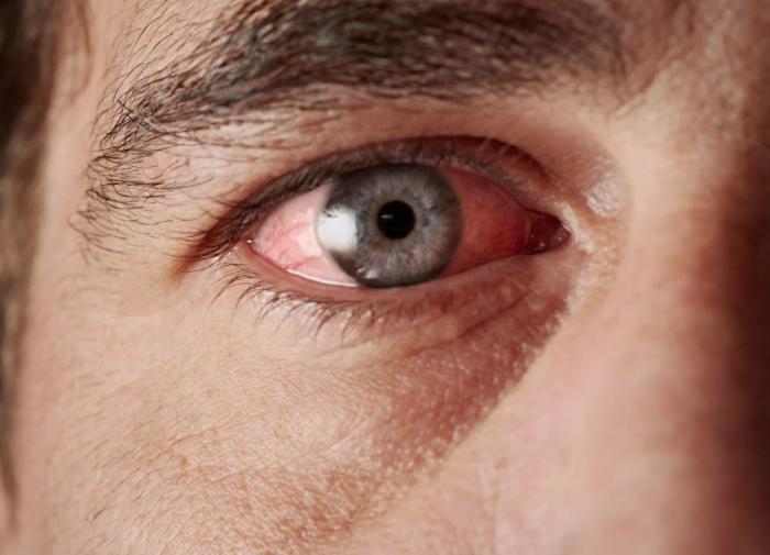 Особые капли с антителами смогут вылечить сухость глаза