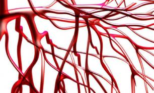 Врачи назвали четырех главных врагов здоровых кровеносных сосудов