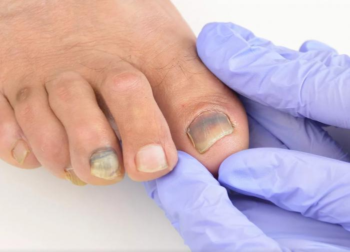 Народный рецепт для облегчения боли при вросшем ногте с помощью чеснока