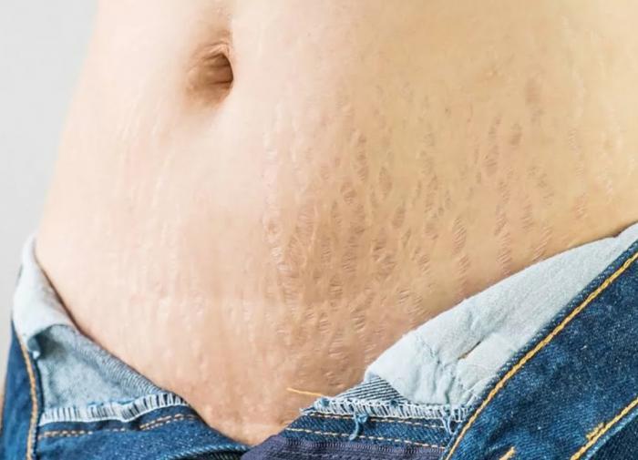 Растяжки на теле