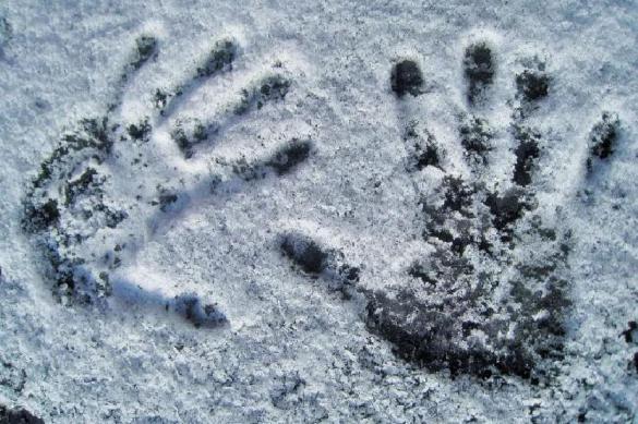 Иркутская пенсионерка отморозила руки в собственном доме