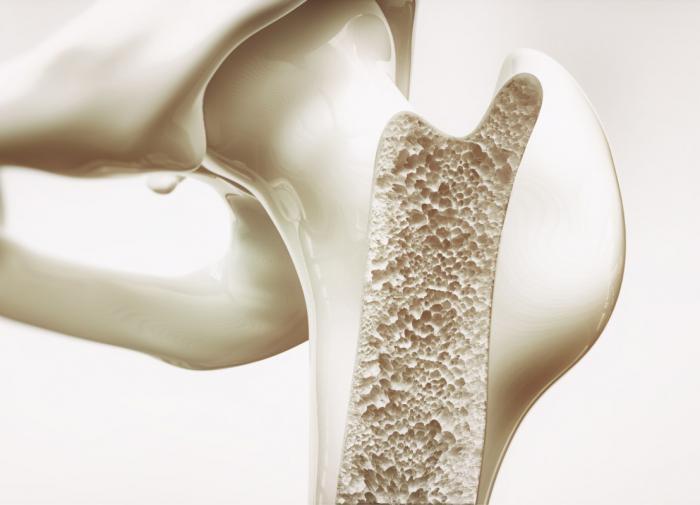 Процесс разрушения костей при остеопорозе можно остановить