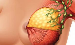 Женская грудь требует регулярного осмотра