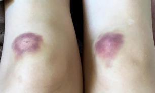 Синяки на ногах говорят о серьезных проблемах со здоровьем - эксперты