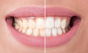 Отбеливание зубов: безопасные способы