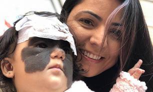 Мама девочки с родимым пятном из США обратилась к жителям России