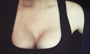 Пластический хирург: большая грудь - это уже некрасиво