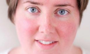 Краснеет лицо: почему и что делать
