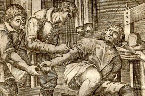 Самые странные, смешные и ужасающие методы лечения в истории медицины