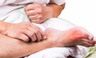 Подагра  редко встречается у женщин и обычно поражает большой палец ноги